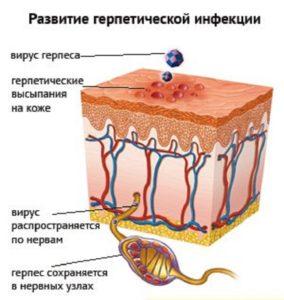 Генитальный герпес длительность лечения
