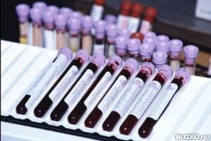 Анализ на герпес 6 типа: расшифровка, что делать, если результат анализа крови и ПЦР положительный и обнаружены антитела к герпесвирусу anti hhv 6 типа igg?