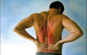Боли после опоясывающего лишая лечение